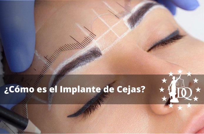 ¿Cómo es el Implante de Cejas?